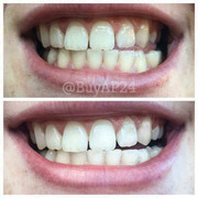 AP24 whitening toothpaste distributor price