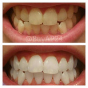 AP24 whitening toothpaste before and after